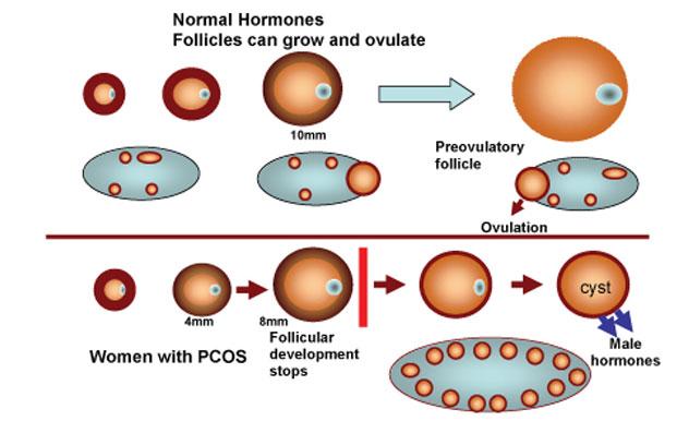 Most Effective Fertility Drugs