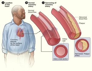 atherosclerosis_2011