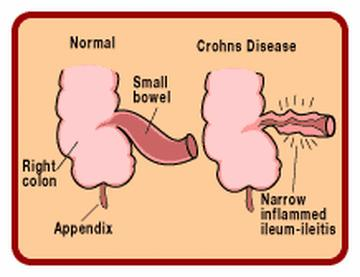 crohns meeting people History of crohn's disease  for some people,  kennedy dalziel also reported on the condition at a british medical association meeting and the paper was.